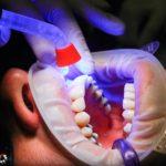 Zła metoda żywienia się to większe braki w zębach oraz dodatkowo ich zgubę