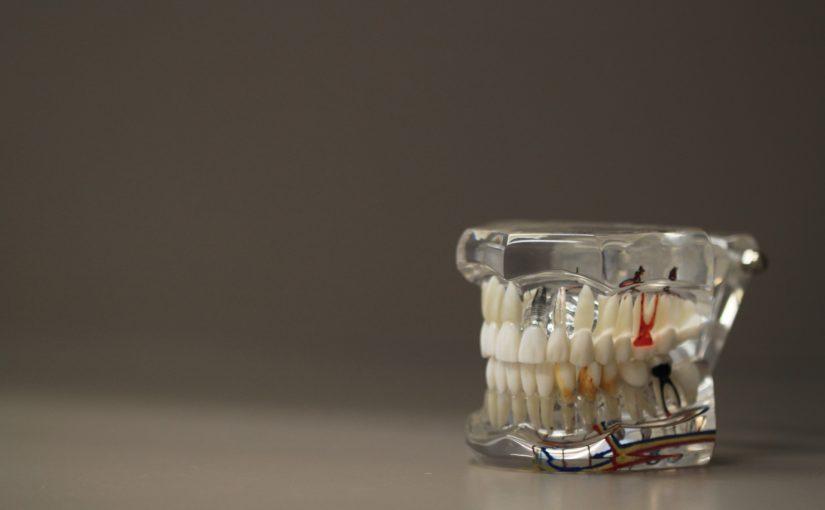 Zły sposób żywienia się to większe niedobory w jamie ustnej a także ich brak